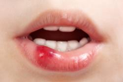 zahnschmerzen kalt tut weh